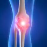 Knee pain? Let's figure it out.